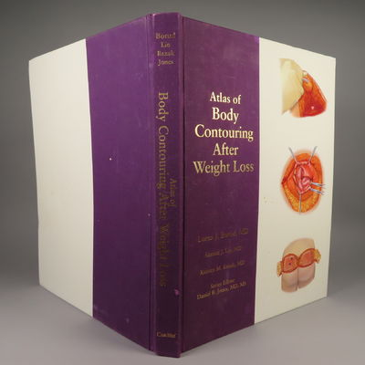 Image for Atlas of Body Contouring After Weight Loss